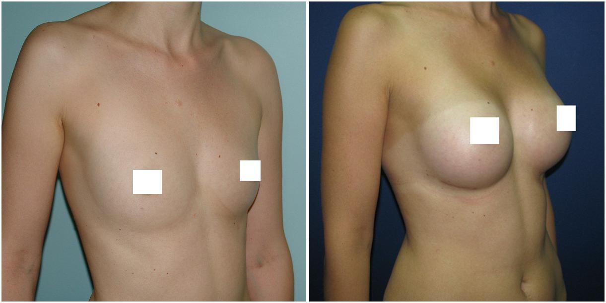 Увеличение груди после 40 лет