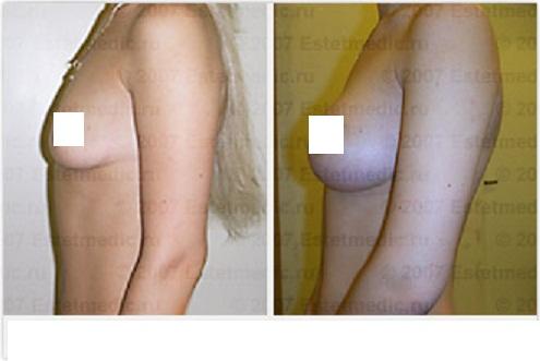 Крема для быстрого увеличения груди